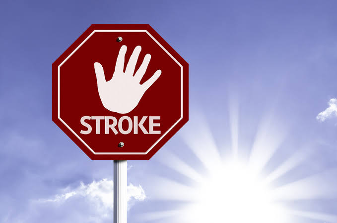 7 things you can do to prevent a stroke